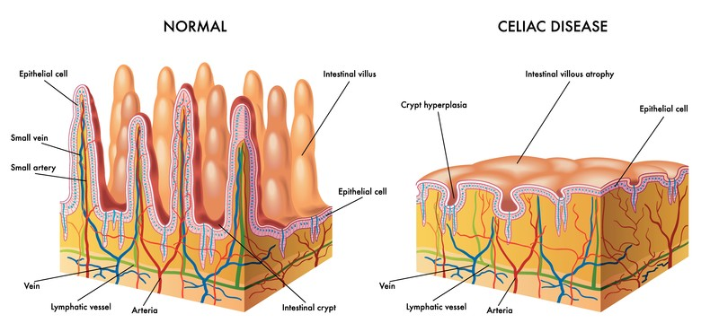 Celiac Damage to Small Intestine Wall